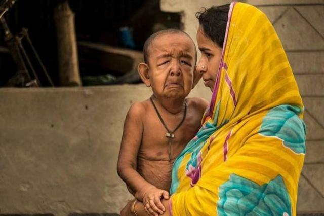 بالصور - هل تذكرون الطفل الذي يعاني من الشيخوخة المبكرة.. شاهدوا كيف أصبح!
